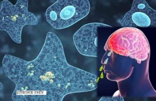 brain eating ameba